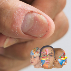 Reflexología para artritis